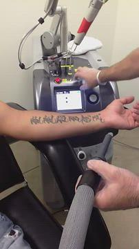Super fast laser tattoo removal