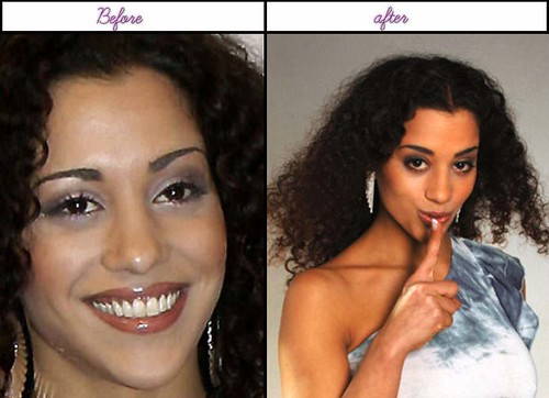 After Before Pictures Of Nadja Benaissa When She Had Her Plastic Sugery In The Latest Yr