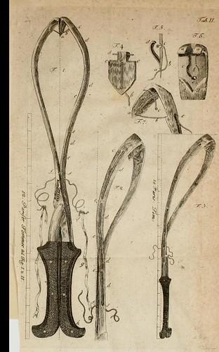 This image is taken from Gesammelte Schriften geburtshülfichen, praktischen und physiologischen Inhalts
