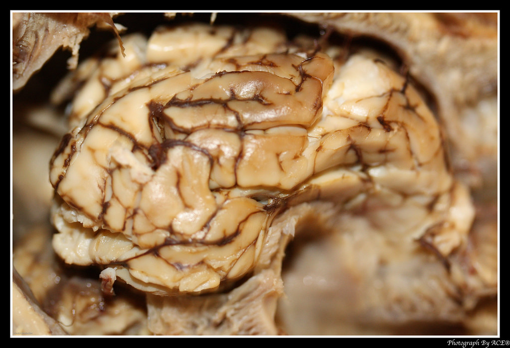 The World\'s newest photos of brain and pig - Flickr Hive Mind