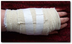 Wrist & Relaxation??? (ylind ypind) Tags: hospital ouch general stitches wrist surgical anaesthetic operation bandages ashington wansbeck orthopaedic procedure surgeon theunforgettablepictures onlywhenilaugh manymanystitches