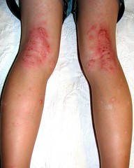 Eczema behind knees and on legs