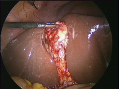Tev's ex-gallbladder (TevK) Tags: surgery removal liver insides guts tev gallbladder laparoscope