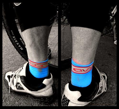 the swollen ankle ride by rOcKeTdOgUk