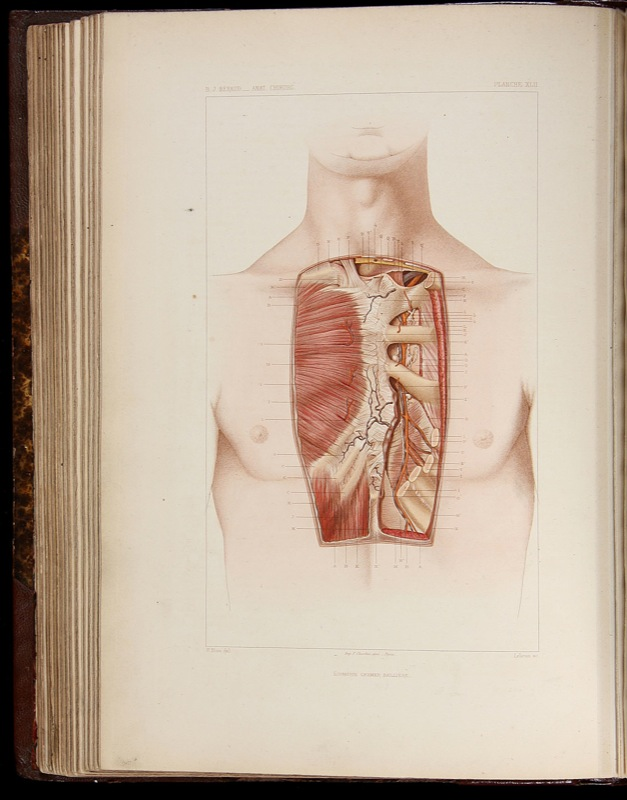 Morbid Anatomy: \