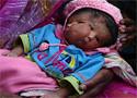 Lepra Una escolar ata un 'Rakhi', un hilo sagrado para los hindúes, en la muñeca de un paciente con lepra al norte de la India (Chowdhuri)