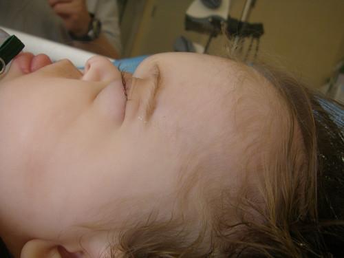Rosemary's Frontal Surgery