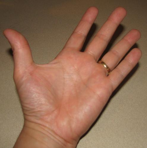 Healed_Hand
