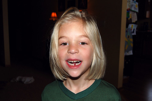 First lost tooth