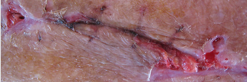 Ferida em fase de cicatrização