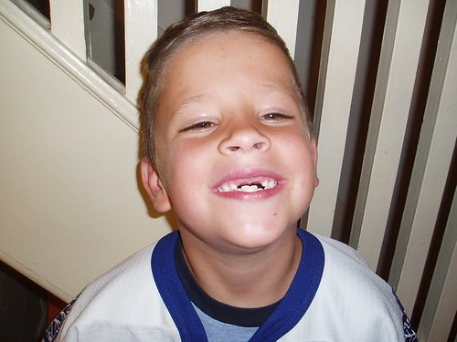 ...Is My Two Front Teeth
