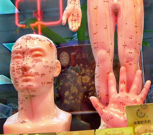 Acupuncture points on a plastic model