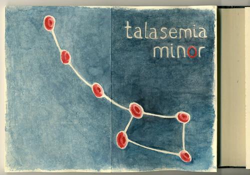 talasemia minor
