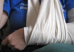 woman ouch pain arm jan janice sling wife questions splint orthopedics adventuresofabrokenarm