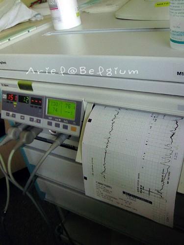 38W Pregnant 產檢