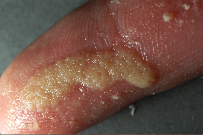 worms on fingers