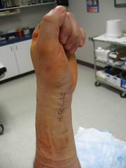 Broken Wing. (krotpong) Tags: wing holes surgery frankenstein wrist scar staples brokenwing brokenwrist castremoval