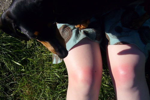 Burned Knees