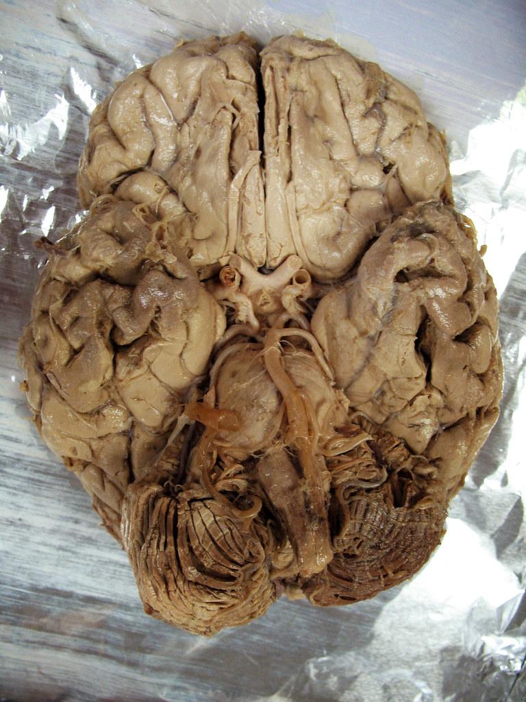 Anatomy Dead Body