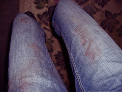 Day 147: My pants got bloody from breaking up a dog fight