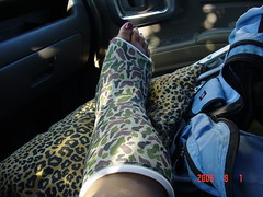 DSC02707 (chilltown1) Tags: toes cast ankle