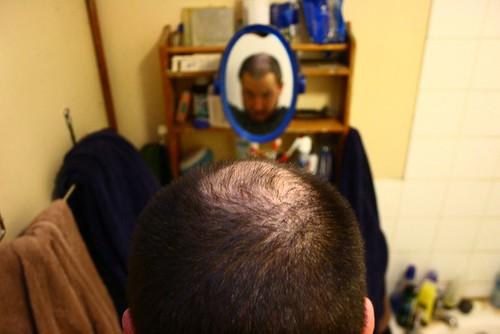 Black Currant Oil For Hair Loss