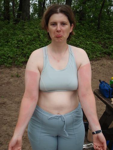 Becky's Sunburn