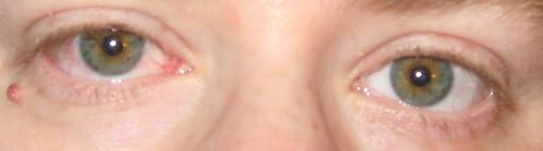 Nasty eye