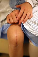 leah + knee surgery