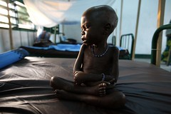 A naked child suffering severe malnutrition par hdptcar