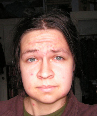 Bonnie\'s Swollen Face After Wisdom Teeth Removal