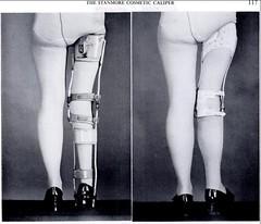 Stanmore%202 (legironlover) Tags: steel strap brace polio kafo legbrace