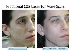 acne new treatment NYC (eloissacunningham77) Tags: new nyc treatment acne