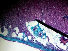 New Method for Engineering Human Tissue Regeneration