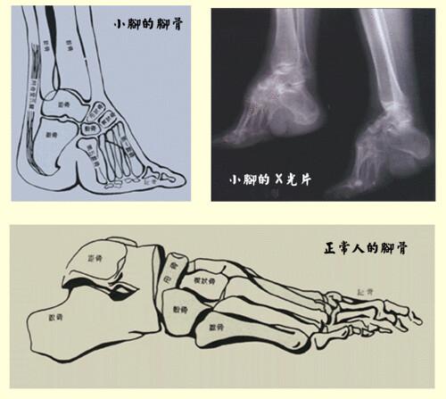 bones of foot. Human foot bones; diagram of