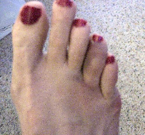 broken toe. My roken toe