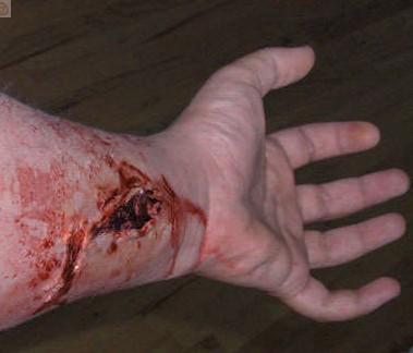 heridas 2