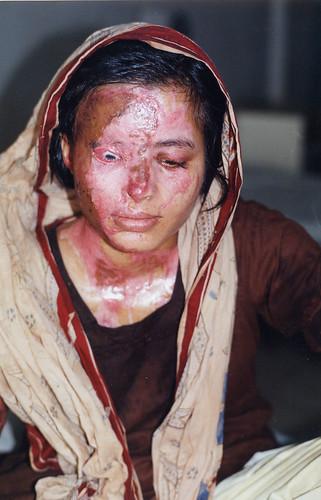 acid victim
