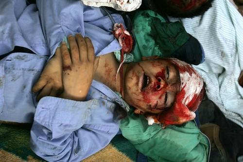 AK0001_Gaza_ by hidriabderraouf.