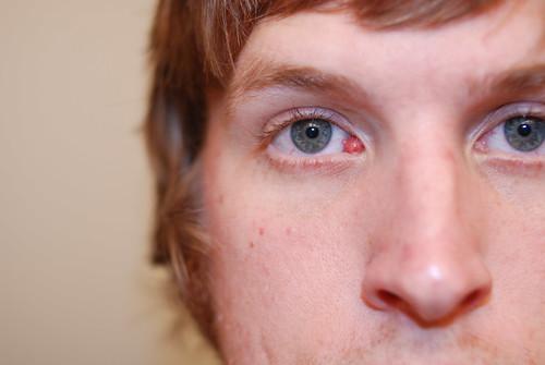 Caruncle Eye