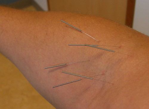 Acupuncture by JohnCalnan, on Flickr