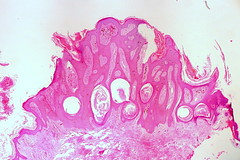 Pigmented Seborrehic Keratosis of the Vulva