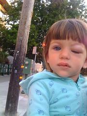 unknown_allergen_1_satyu_0 (shreddd) Tags: allergy satya fatlip puffyeye