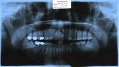 My teeth (tr!ckster) Tags: teeth xray wisdomteeth fillings