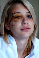 little sister had a rough day (.:Chelsea Dagger:.) Tags: ohio portrait people usa black eye college girl car portraits hospital real person photography blood er unitedstates accident head cleveland injury clevelandohio teen american blanket blonde bracelet stitches teenager bruise emergency scab blackeye trauma caraccident chelseadagger prettyblondegirl chelseakaliwhatever lifeflighted cmckeephotography chelseamckee