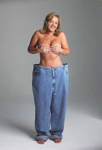 Naked after huge weightloss