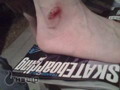 road rash #1 (mynameisearlb) Tags: from helio my