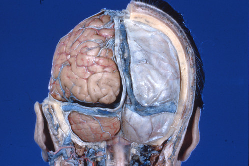 Bassett Collection brain