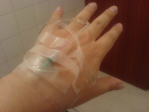 Mi mano con suero