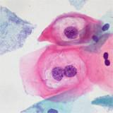 Papanicolau VPH